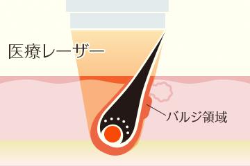蓄熱式の医療レーザー脱毛の仕組み
