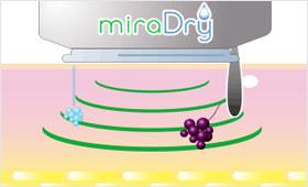ミラドライの仕組み①マイクロは照射