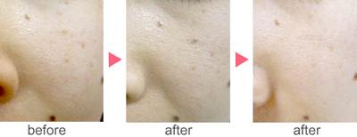 フォトRF(オーロラ)によるクスミ治療の症例
