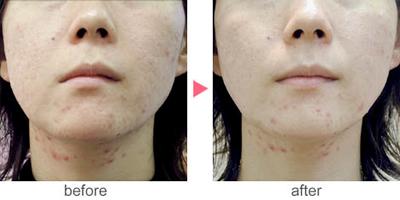 フォトRF(オーロラ)によるにきび痕治療の症例