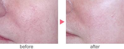 フォトRF(オーロラ)による赤ら顔治療の症例