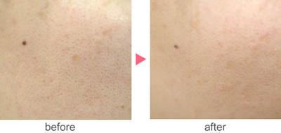 フォトRF(オーロラ)による毛穴治療の症例