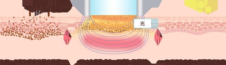 フォトRF(オーロラ)によるシミ・くすみ・そばかす治療の仕組み